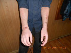 Безнаказанность тюремщиков ужасает или как ломали чеченца